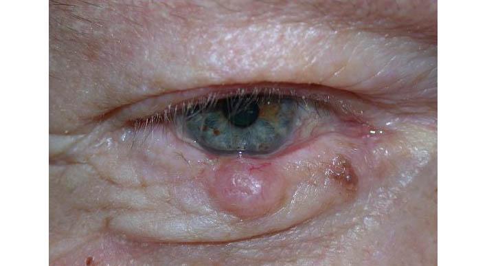 papilloma lid skin viermii obișnuiți sunt comuni