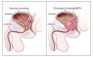 papillary urothelial carcinoma in hindi