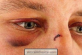 toxoplasmoza oculara
