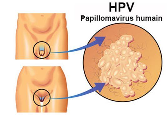 papilloma virus chez lhomme