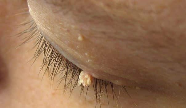 Papillom entfernen zu hause, Papilloma warze entfernen - Papillom entfernen hausmittel