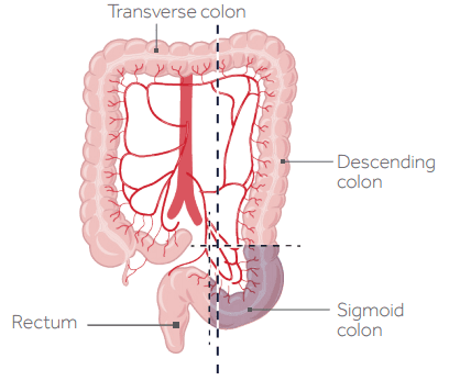 cancer colorectal type