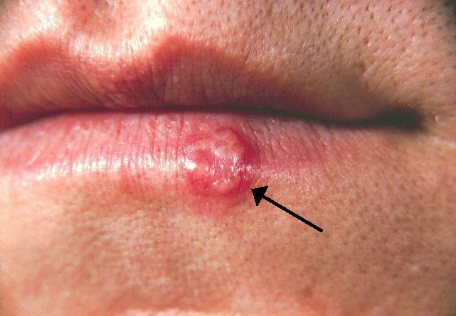 herpes zoster papiloma