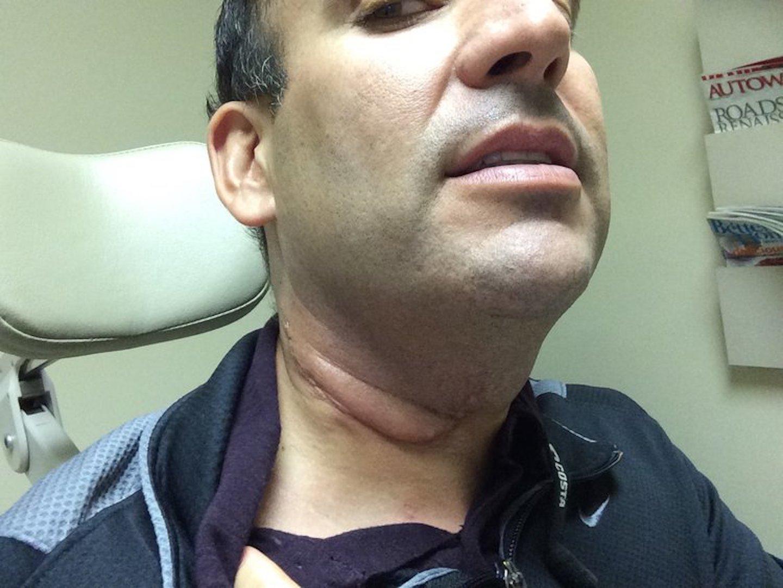 Hpv neck cyst, Papilloma virus neck