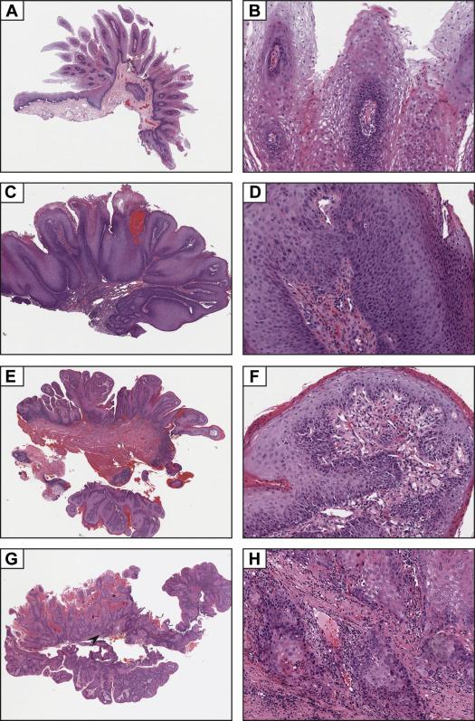 squamous papilloma dysplasia