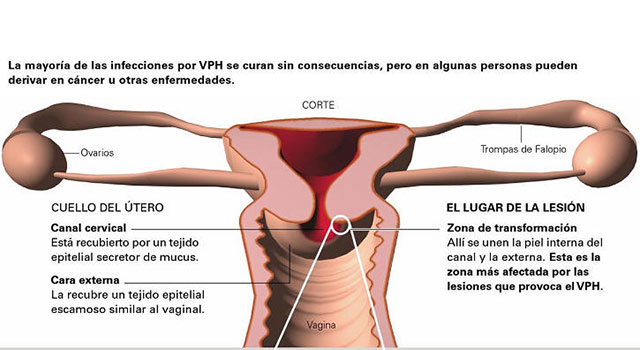 virus papiloma humano durante embarazo metastatic cancer natural cure