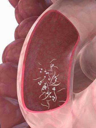 enterobius vermicularis nas?l bulas?r