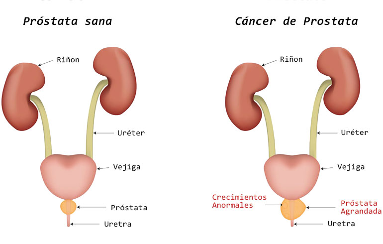 hierbabuena oxiuros treatment of hpv cervical cancer