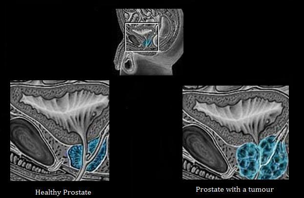 cancer de piele cu metastaze