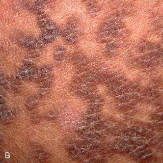 hpv en hombres contagio sarcoma cancer uk