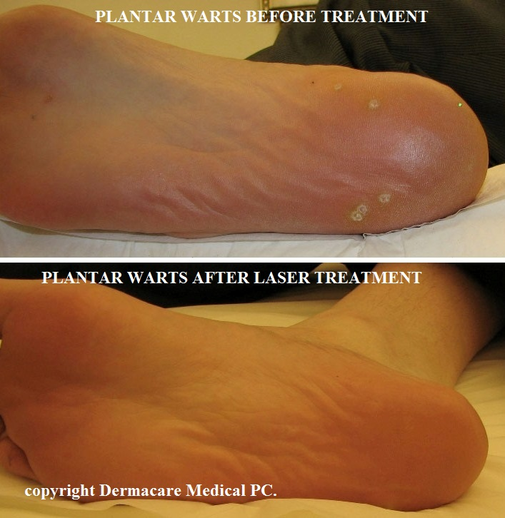 hpv wart removal cost