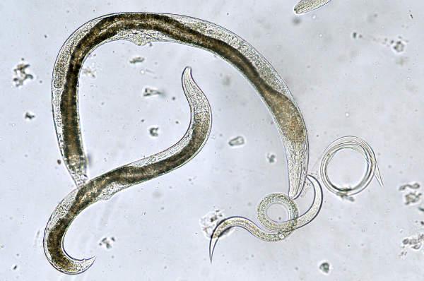 simptome pt paraziti intestinali hpv on lip treatment