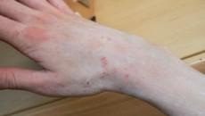raie oameni virus papiloma humano maligno