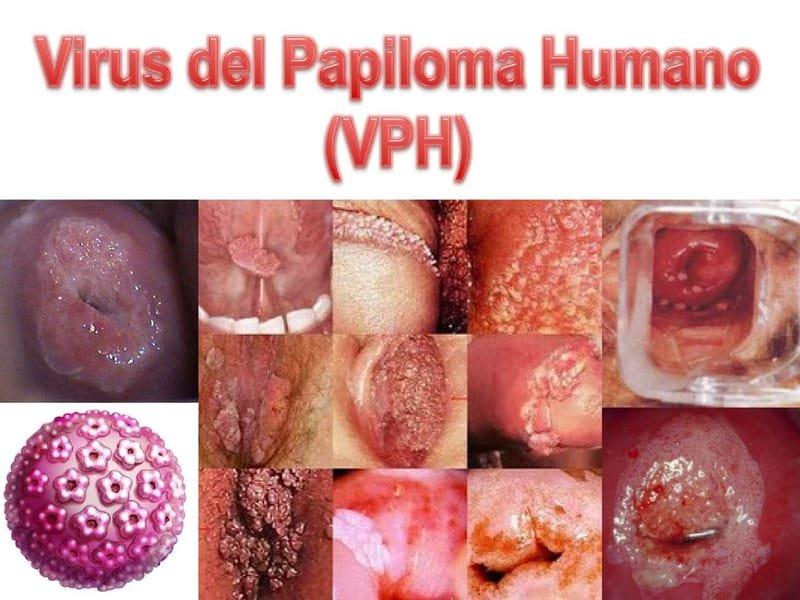 virus del papiloma humano y verrugas genitales tratament gripa 2019