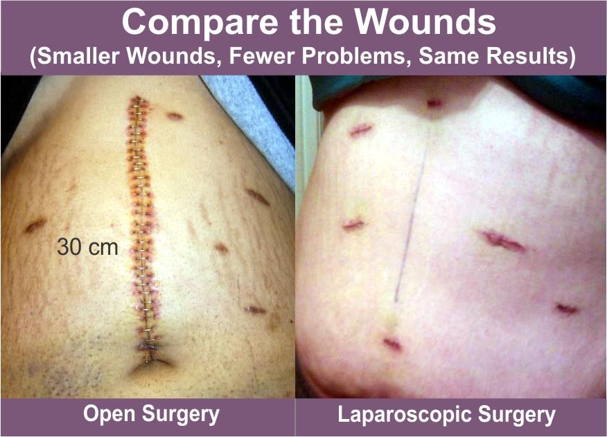 abdominal cancer surgery cancer la ficat pareri