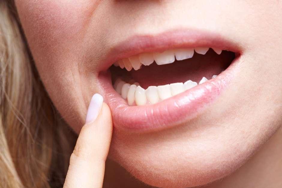 puede salir papiloma en la boca papanicolaou anormal y vph positivo