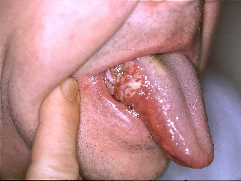 hpv on the neck confluent of reticulated papillomatosis (as known as gougerot-carteaud syndrome)
