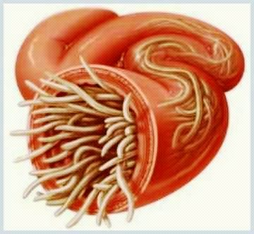 tratarea viermilor intestinali la adulti enterobius vermicularis via de transmision