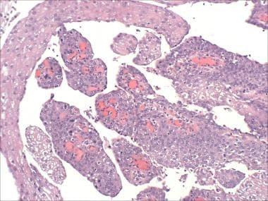 papilloma in the bladder papillomavirus douleur bas ventre