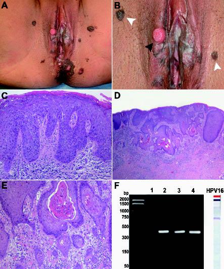 papillomatosis bowenoide papilloma means what