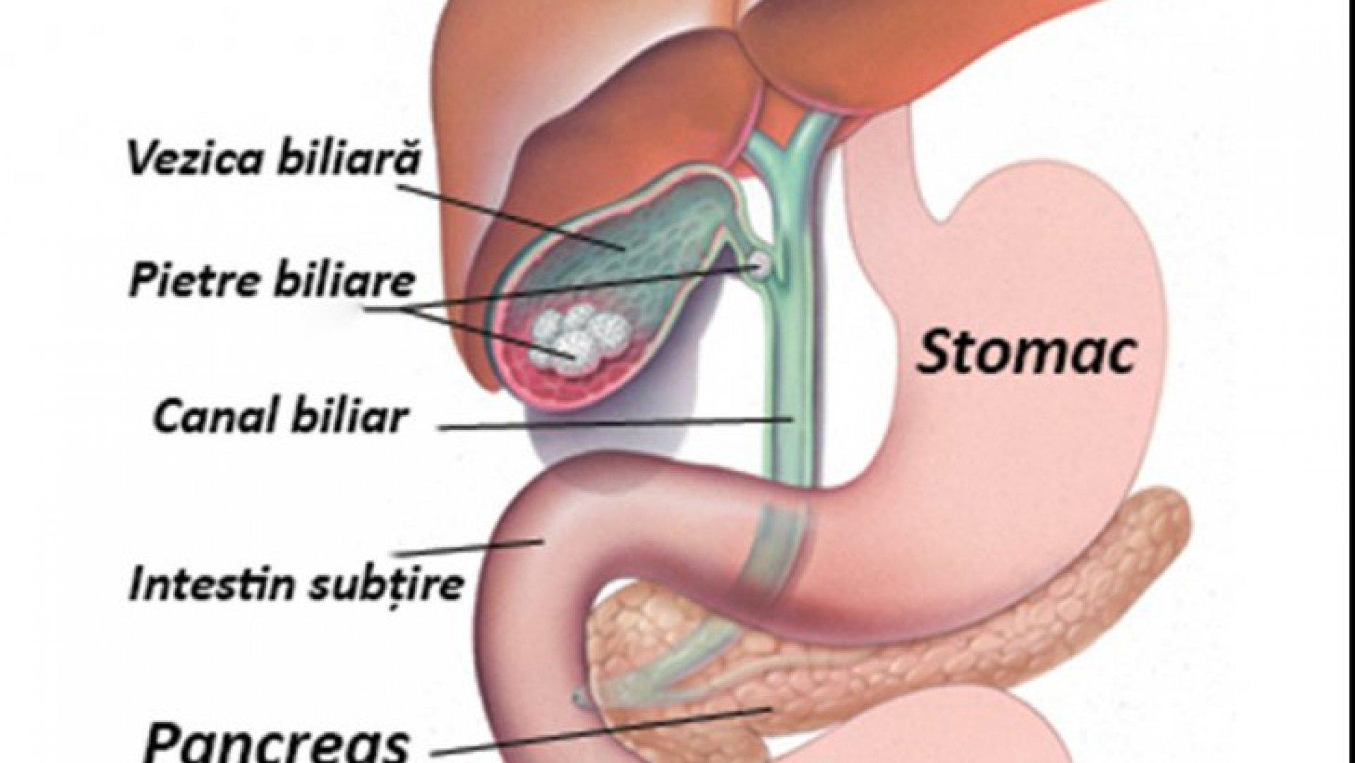 papiloma humano cancer de pene giardia lamblia parazit