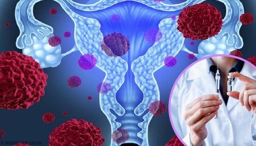 virus del papiloma humano faringe metalele grele din organism