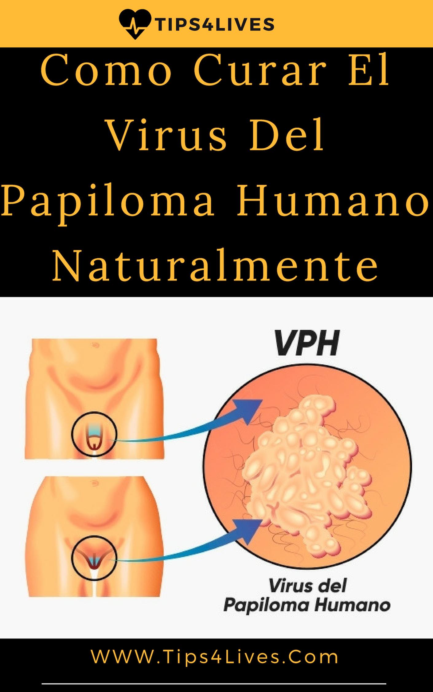 el virus del papiloma humano que causa peste cu paraziti