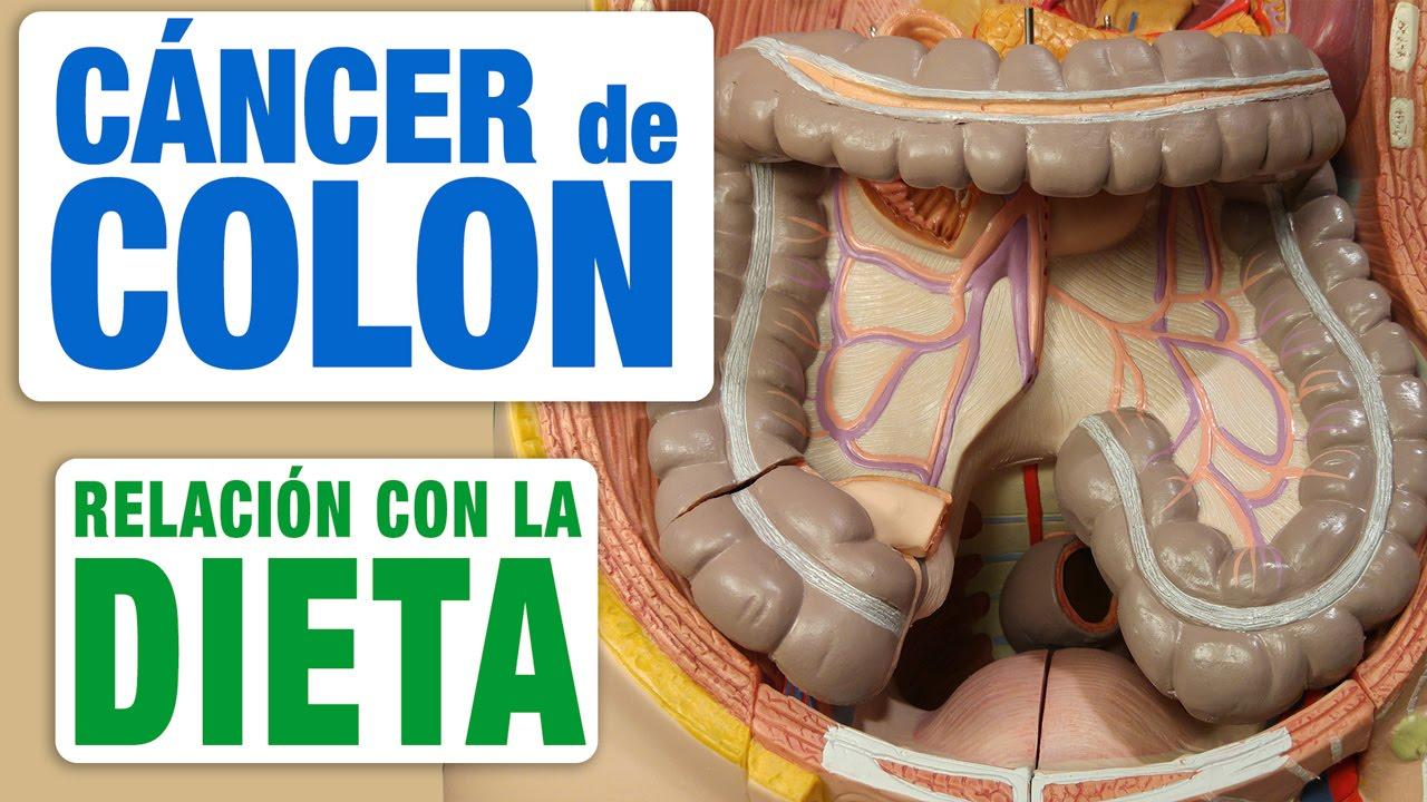 cancer de colon que puedo comer
