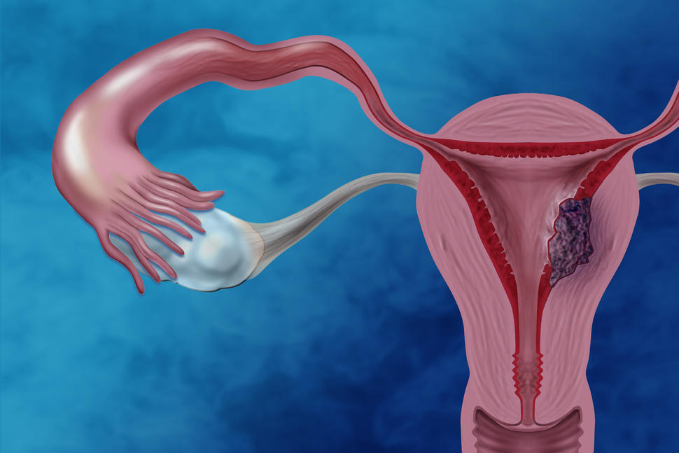 cancer of uterine