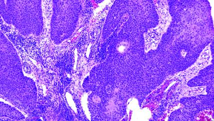 recurrent respiratory papillomatosis pathology cancer de uretra tratamiento
