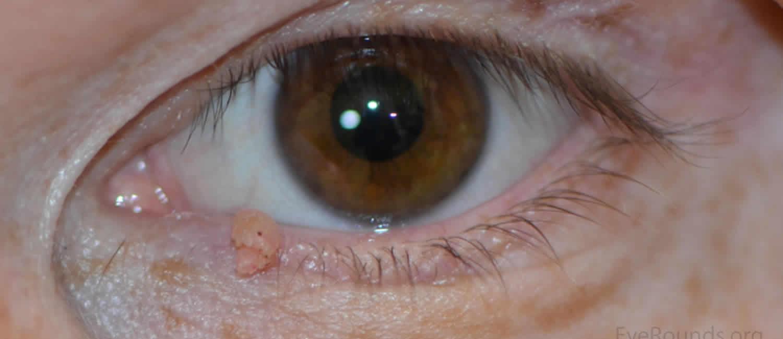 squamous papilloma eye