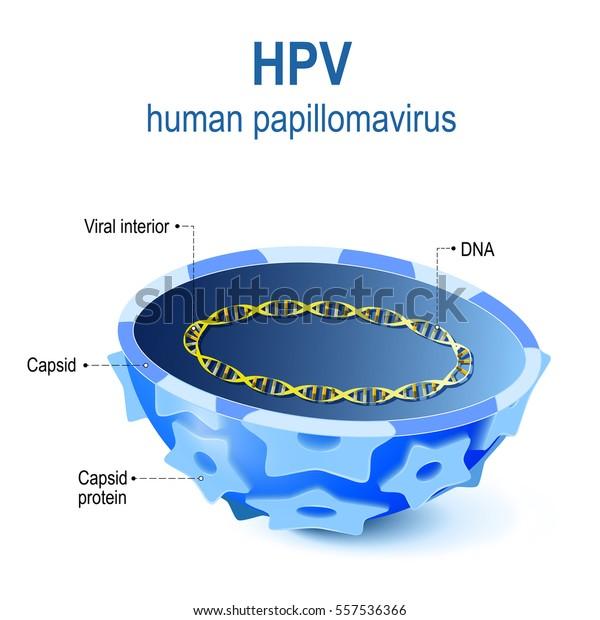 pathology of papillomatosis hpv eye symptoms