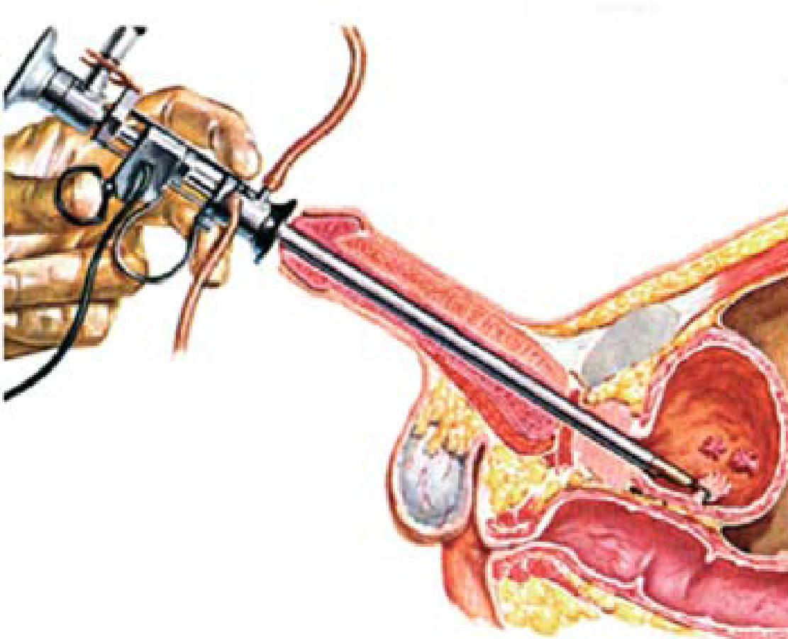 papiloma virus tratamientos esophageal cancer hpv
