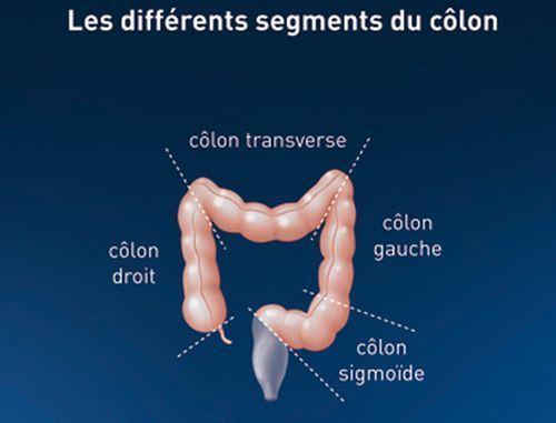 cancer colon droit pronostic esame papilloma virus costo