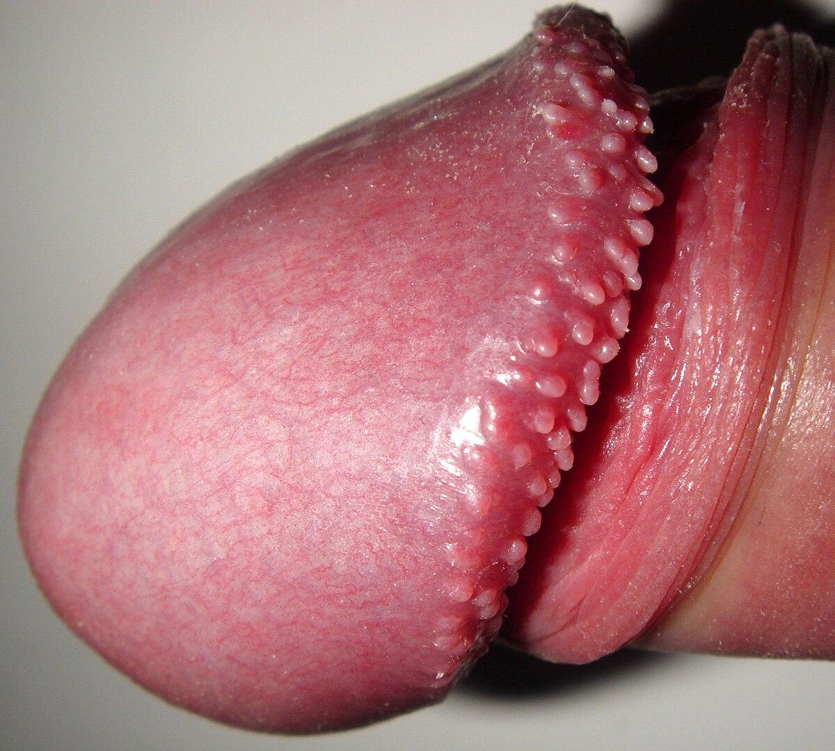 papillomatosis adalah can having hpv cause cancer