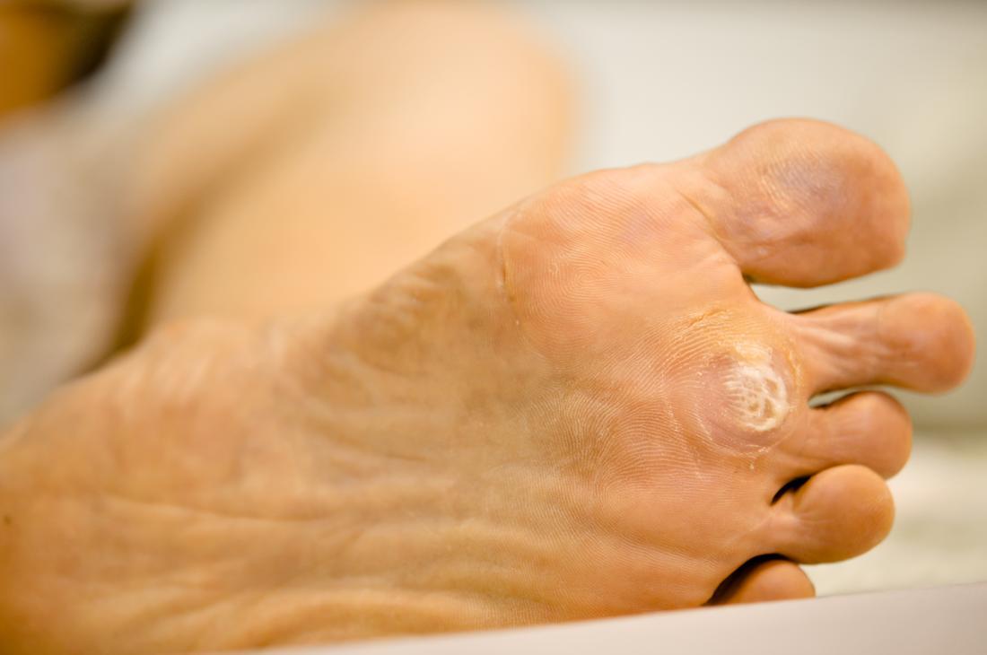 warts foot spreading