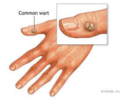 il papilloma virus da sintomi