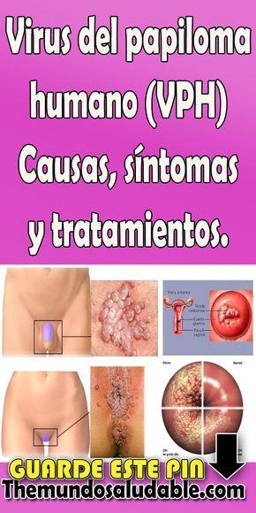 papiloma humano tratamiento sintomas