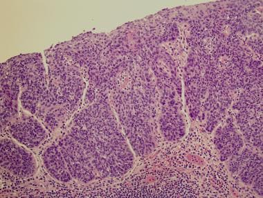 papillary urothelial carcinoma with squamous metaplasia hpv cancer in neck