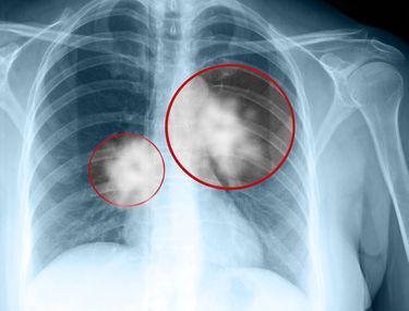 cancer pulmonar metastaza simptome