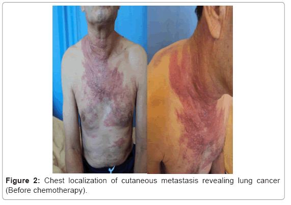 metastatic cancer and skin chimioterapia in cancerul de ficat