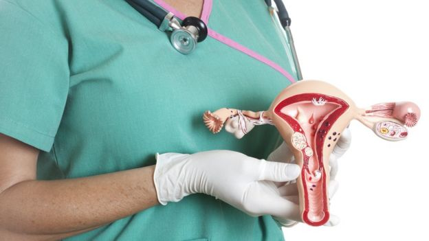 virus del papiloma ultima noticia base of tongue cancer and hpv
