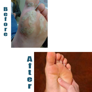 wart on foot cure