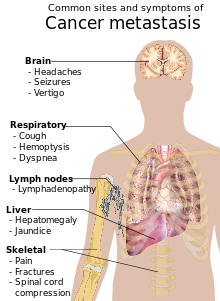 metastatic cancer meaning