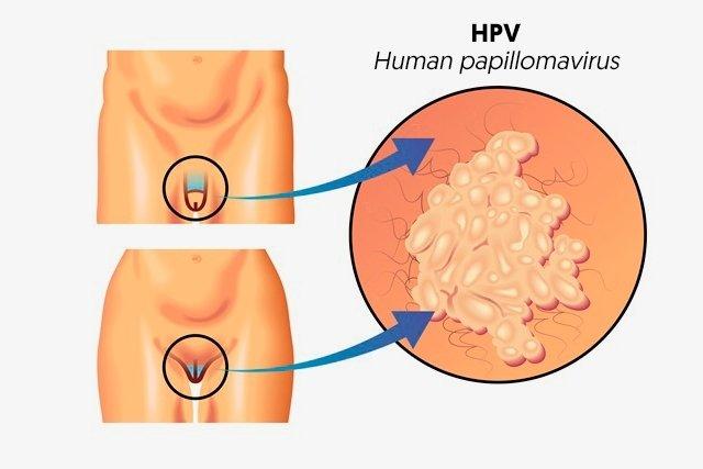 papilloma virus hsil cin 2