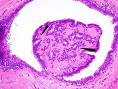 intraductal papilloma in situ cell papilloma eyelid