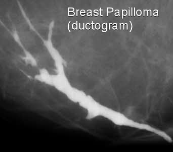 do breast papillomas go away