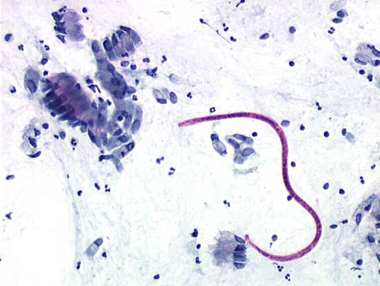 enterobius vermicularis uterus