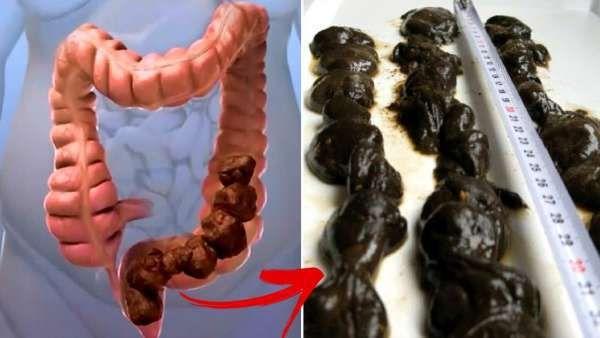 toxine colon yengec paraziti
