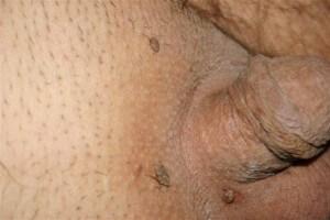hpv tedavisi erkekler cancer vezica urinara tratament